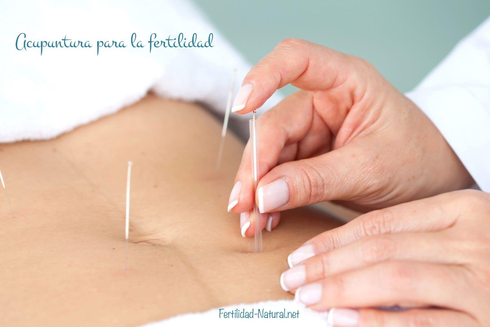 acupuntura fertilidad